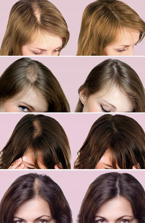 cienkie rzadkie wypadające włosy